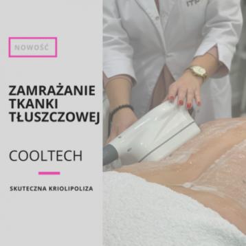 Nowość! Cooltech – zamrażanie tkanki tłuszczowej